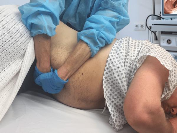Endoscopy nurse injury