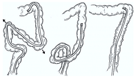 Looping in Colonoscopy: A Primer