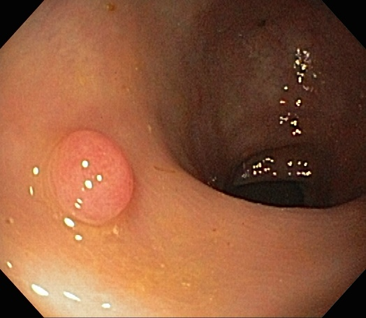Colonoscopy Quality Measures: Withdrawal Time & ADR